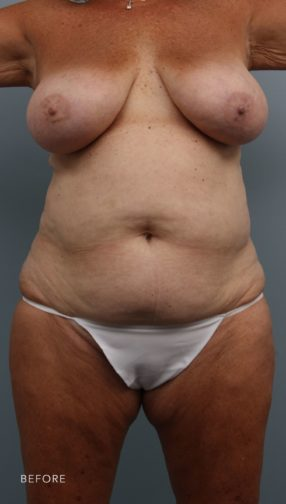This is the front view of a woman before undergoing a mommy makeover procedure which included a breast reduction and abdominoplasty.