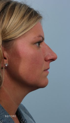 This is the side profile of woman with blonde hair before undergoing a rhinoplasty.