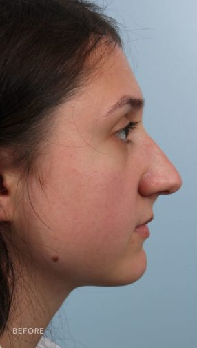 This is the side profile view of a brunette girl before undergoing an endonasal rhinoplasty procedure. Her nose has a slight bump and droops slightly.