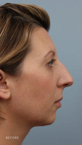 This is the side profile of a brunette woman before undergoing a rhinoplasty and chin augmentation surgery. She has a bump on her nose.