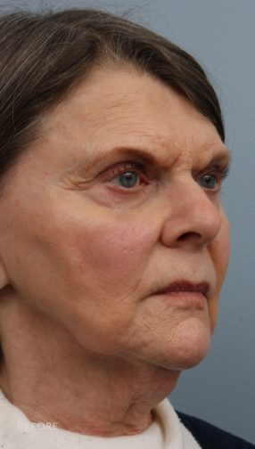 This is the oblique view of a woman before undergoing a lower face and neck lift procedure. She has sagging skin on the lower parts of her face. She is wearing a white and black shirt.