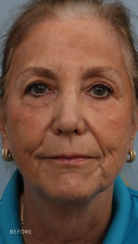 This is the front view of a blonde woman before undergoing a deep plane facelift surgery. She has wrinkling on her lower face and neck.