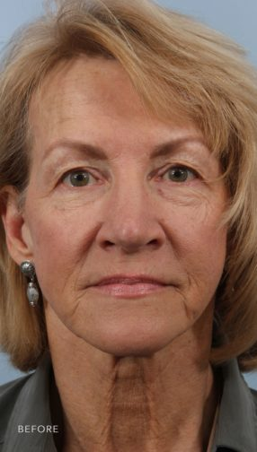 This is the front view of a woman before her blepharoplasty and fat grafting procedure.