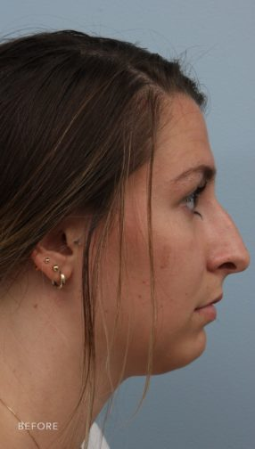 This is the side profile of a brunette woman before undergoing a rhinoplasty procedure to fix her slightly crooked and drooping nose.