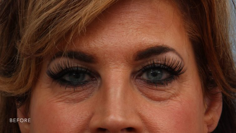 This is the front view of a woman before undergoing a upper and lower lid blepharoplasty. She has excess sagging skin above and below her eyes
