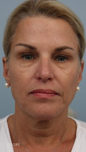 This is the front view of a blonde woman before undergoing an upper and lower lid blepharoplasty and fat grafting. She has excess skin above and below her eyes.
