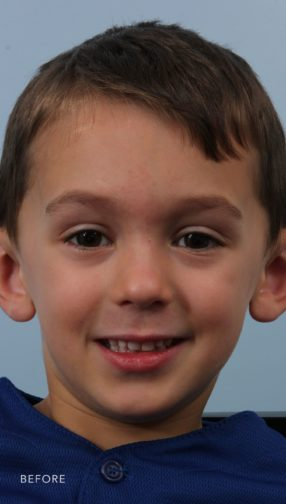 This is the front view of a young boy in a blue shirt before his otoplasty procedure. His ears stick out off of his head.
