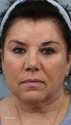 This is the front view of a brunette woman before her Deep Plane Facelift surgery. She has sagging and wrinkled skin around her eyes and down to her chin.
