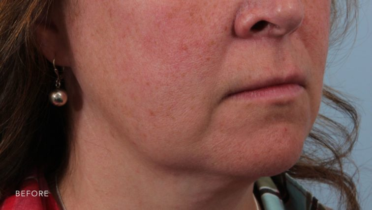 This is the oblique view of a woman before undergoing a weekend facelift. She has sagging and wrinkled skin along her jowls and on her lower face.