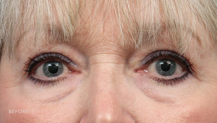 This is the front view of a blonde woman before undergoing a blepharoplasty procedure.