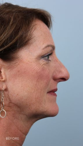 This is the side profile of a brunette woman before undergoing a rhinoplasty surgery. She has a drooping nose.