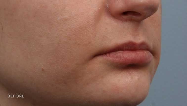 This is the oblique view of a woman's lips before she got a lip lift. Her upper lift appears quite small and thin.