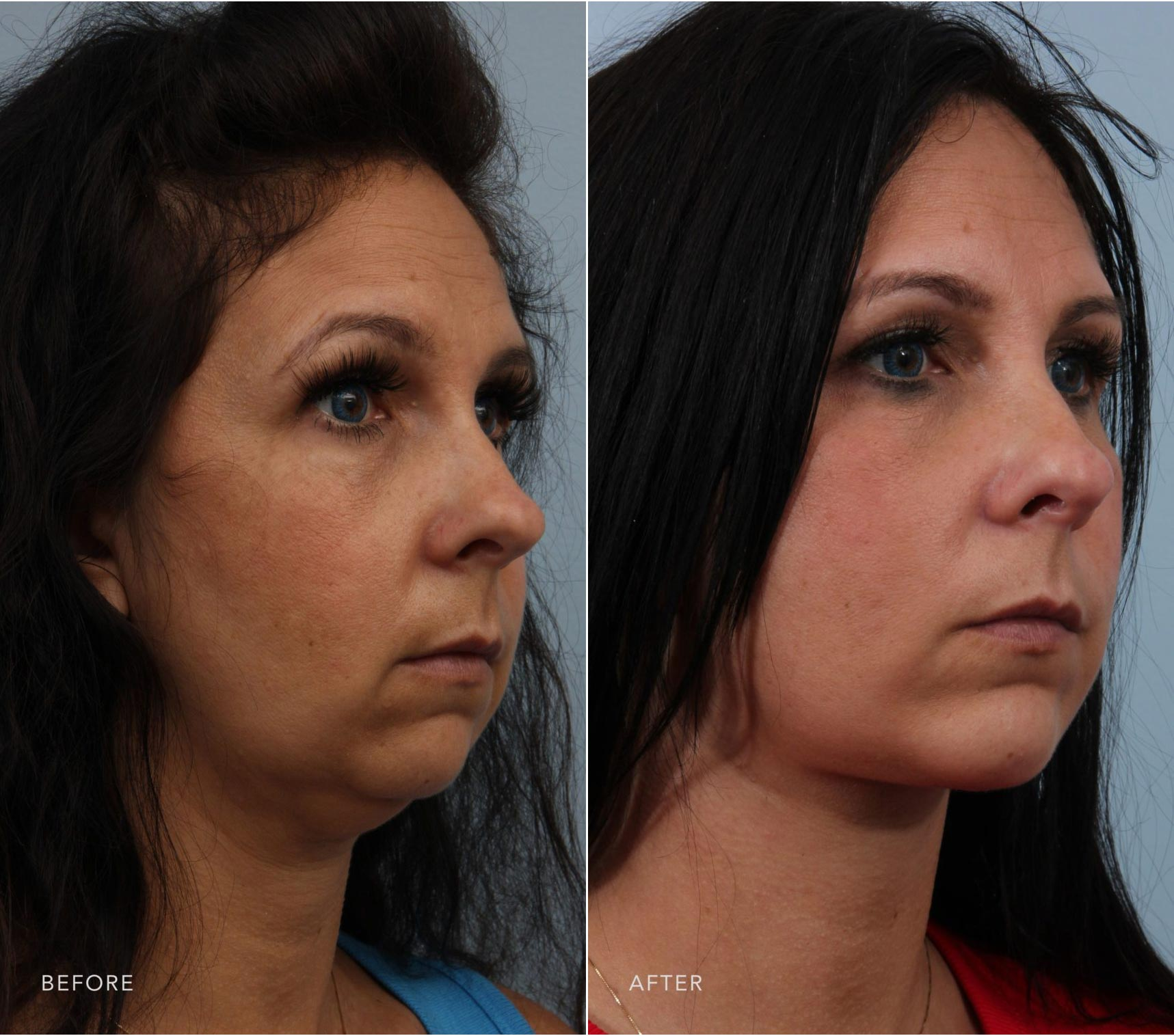 Closeup of a female patient before and after a deep plane facelift, chin augmentation, and facial liposuction