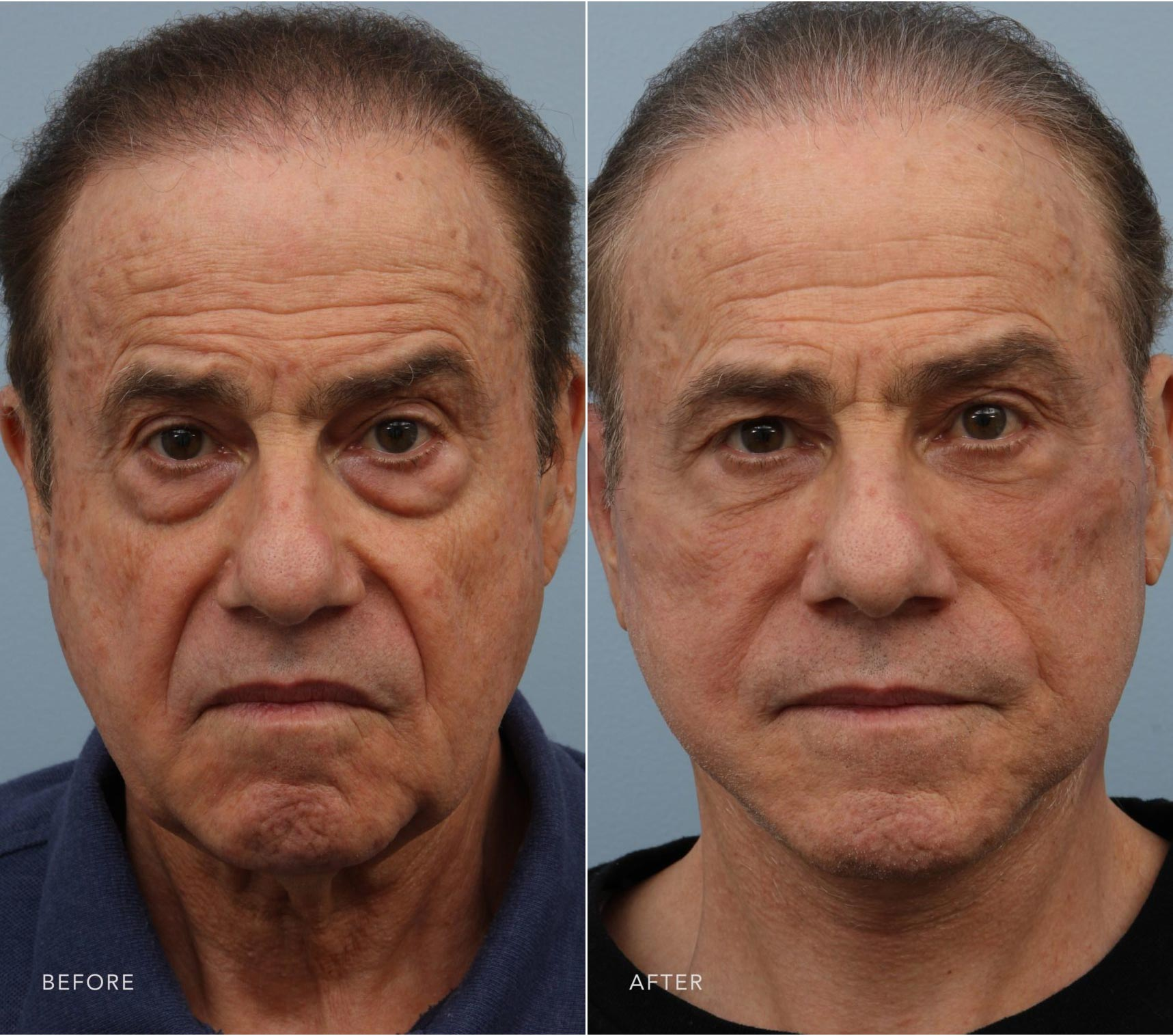 Closeup of a male patient before and after a deep plane facelift and blepharoplasty, which transformed his face and neck