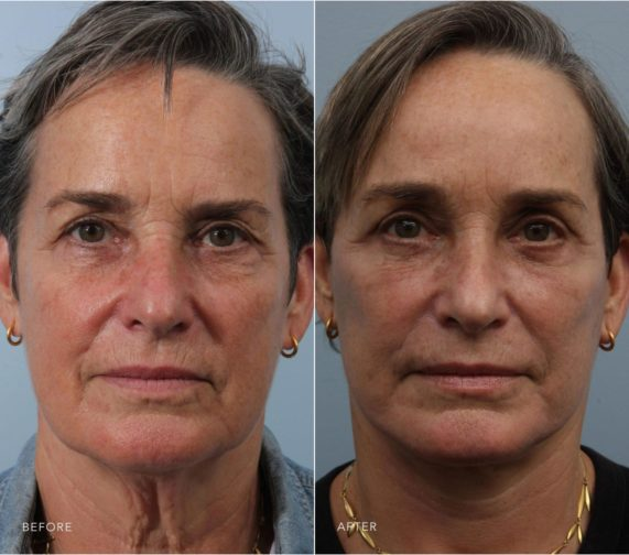Closeup of a female patient before and after facelift plastic surgery to reverse the signs of aging in the face and neck