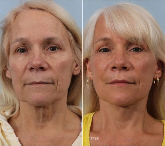 Closeup of a female patient before and after deep plane facelift surgery showcasing the natural results