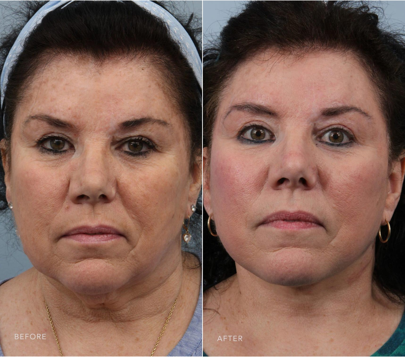 Closeup of a female patient before and after a deep plane facelift which gave the mid and lower face a youthful look