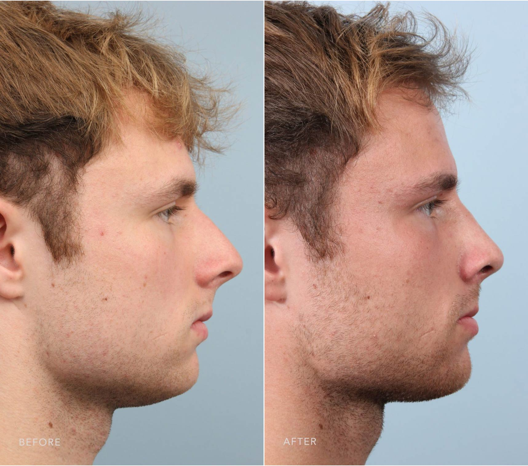 Closeup of a male patient before and after having rhinoplasty plastic surgery to remedy an oversized nose