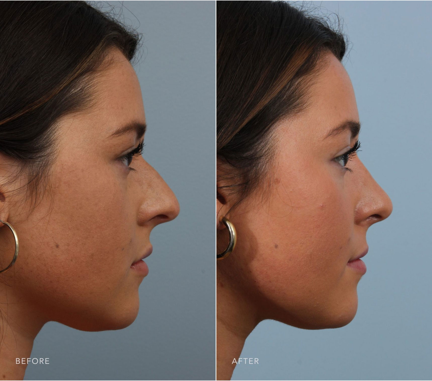 Closeup of a female patient before and after undergoing closed rhinoplasty plastic surgery