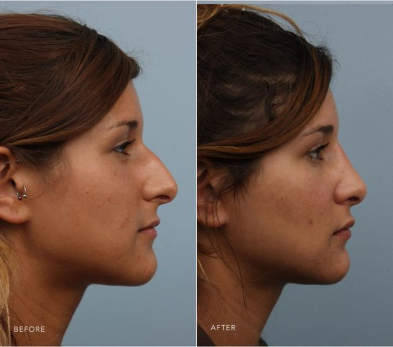 Closeup of a female patient before and after having rhinoplasty plastic surgery to remedy a crooked and drooping nose