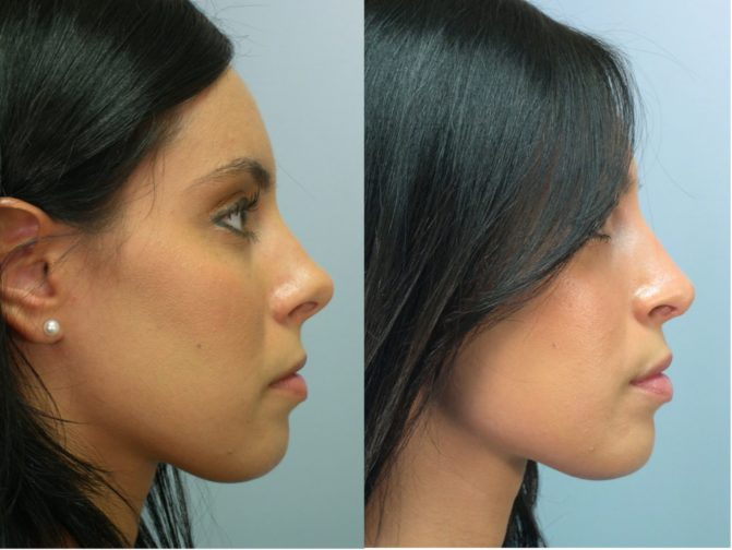before and after photos showcasing rhinoplasty results