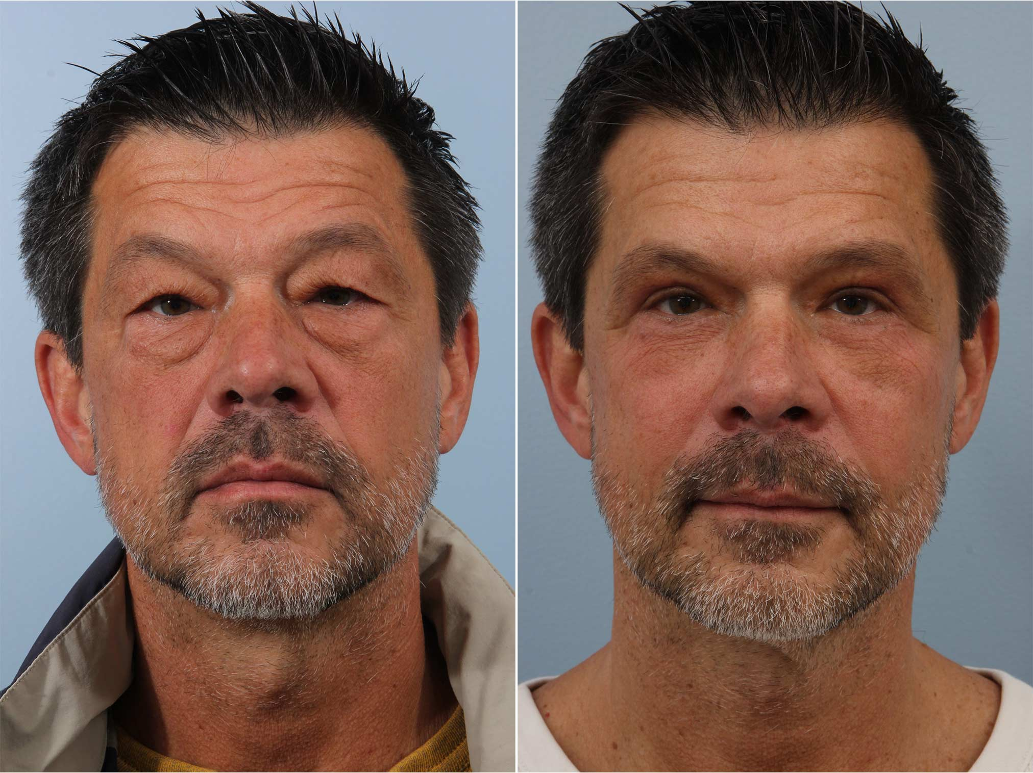 Closeup of a male patient before and after blepharoplasty surgery, which removed undereye bags and puffiness