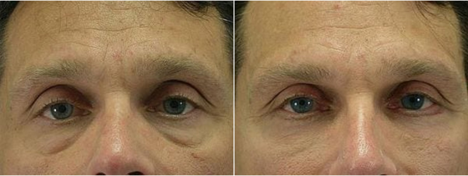 Closeup of a male's eyes before and after blepharoplasty plastic surgery which removed excess skin on his lower eyelids