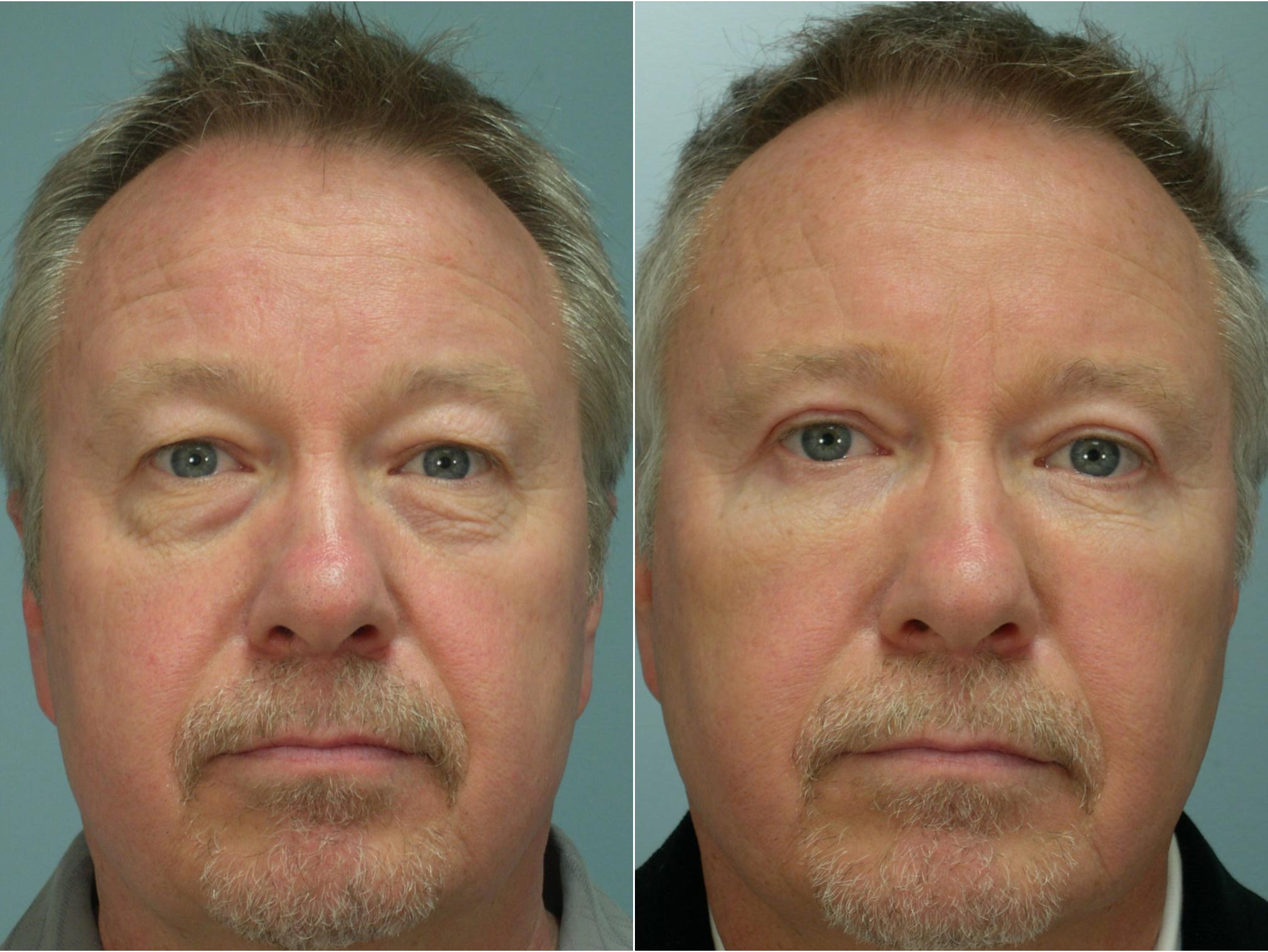 Closeup of a male patient before and after blepharoplasty surgery, resulting in excess skin being removed