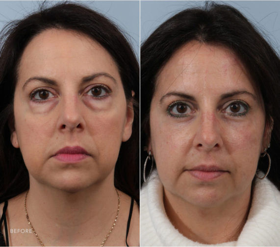 Closeup of a female patient before and after blepharoplasty surgery, which reduced puffy undereyes for a younger look