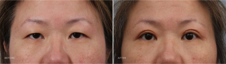 Closeup of a female patient before and after blepharoplasty, which rejuvenates the eyelids for a refreshed look