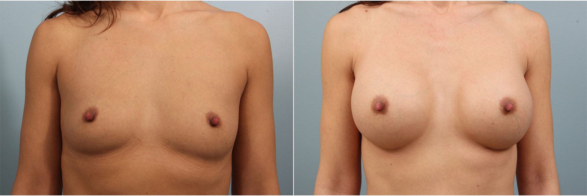 Closeup of a female before and after breast augmentation surgery, with round silicone implants and natural results