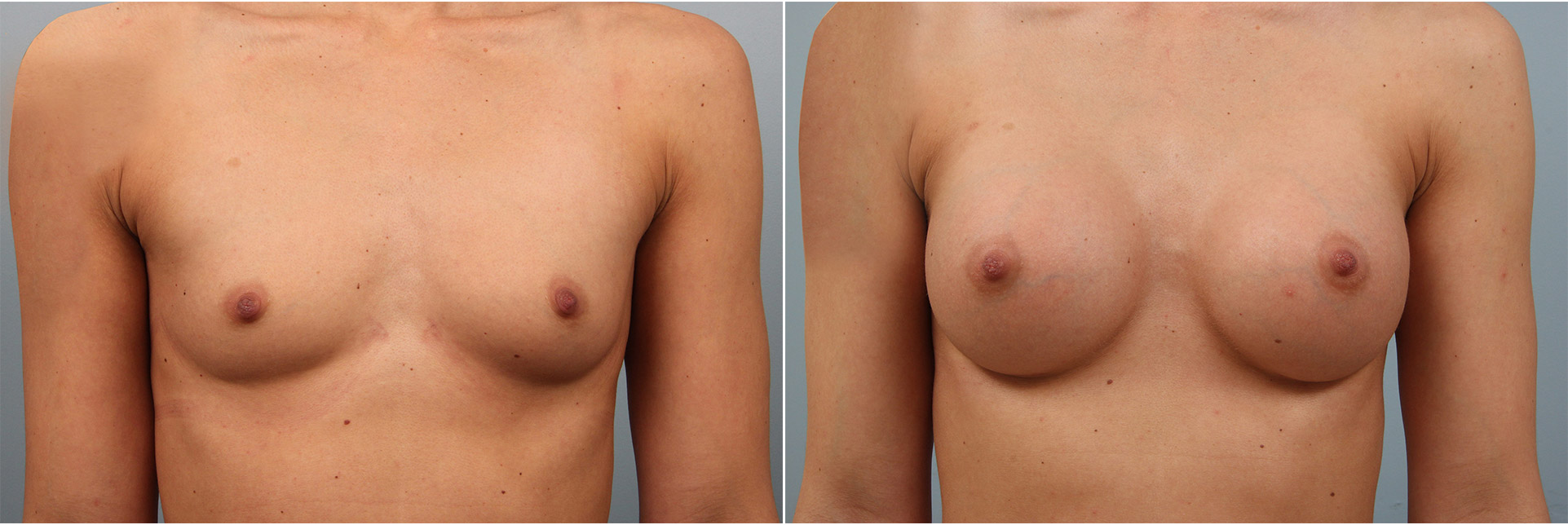 Closeup of a female before and after breast augmentation surgery, which corrected asymmetrical breasts