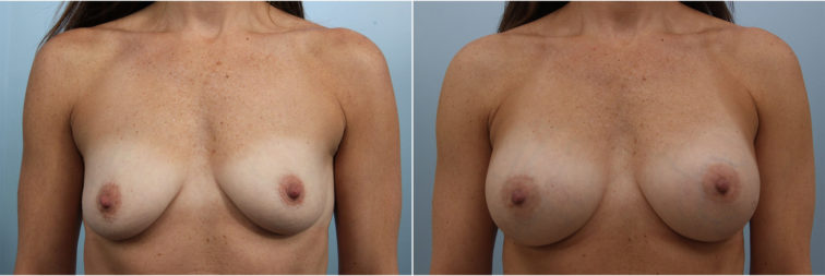 Closeup of a female before and after breast augmentation surgery, showing fuller breasts with silicone implants