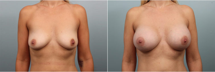 Closeup of a female before and after breast augmentation surgery, with 385 CC silicone implants placed under the muscle
