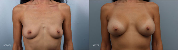 Closeup of a female before and after breast augmentation surgery, resulting in larger, natural-looking breasts