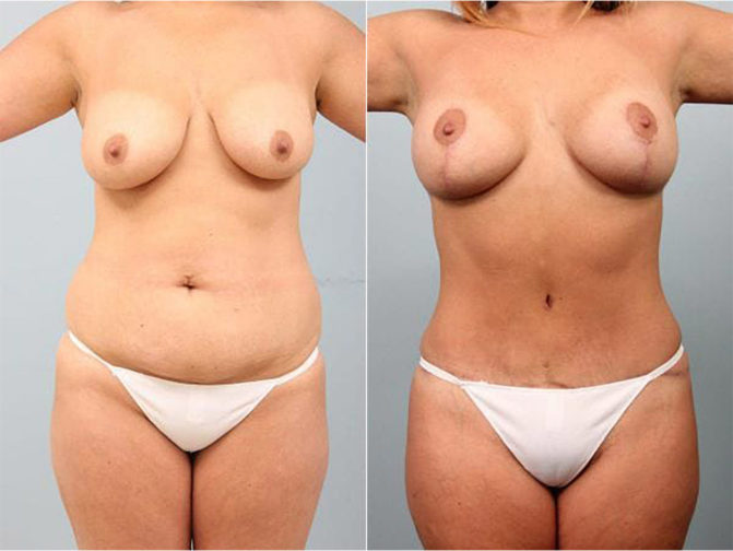 Closeup of female's midsection before and after tummy tuck surgery to remove loose skin and stretch marks