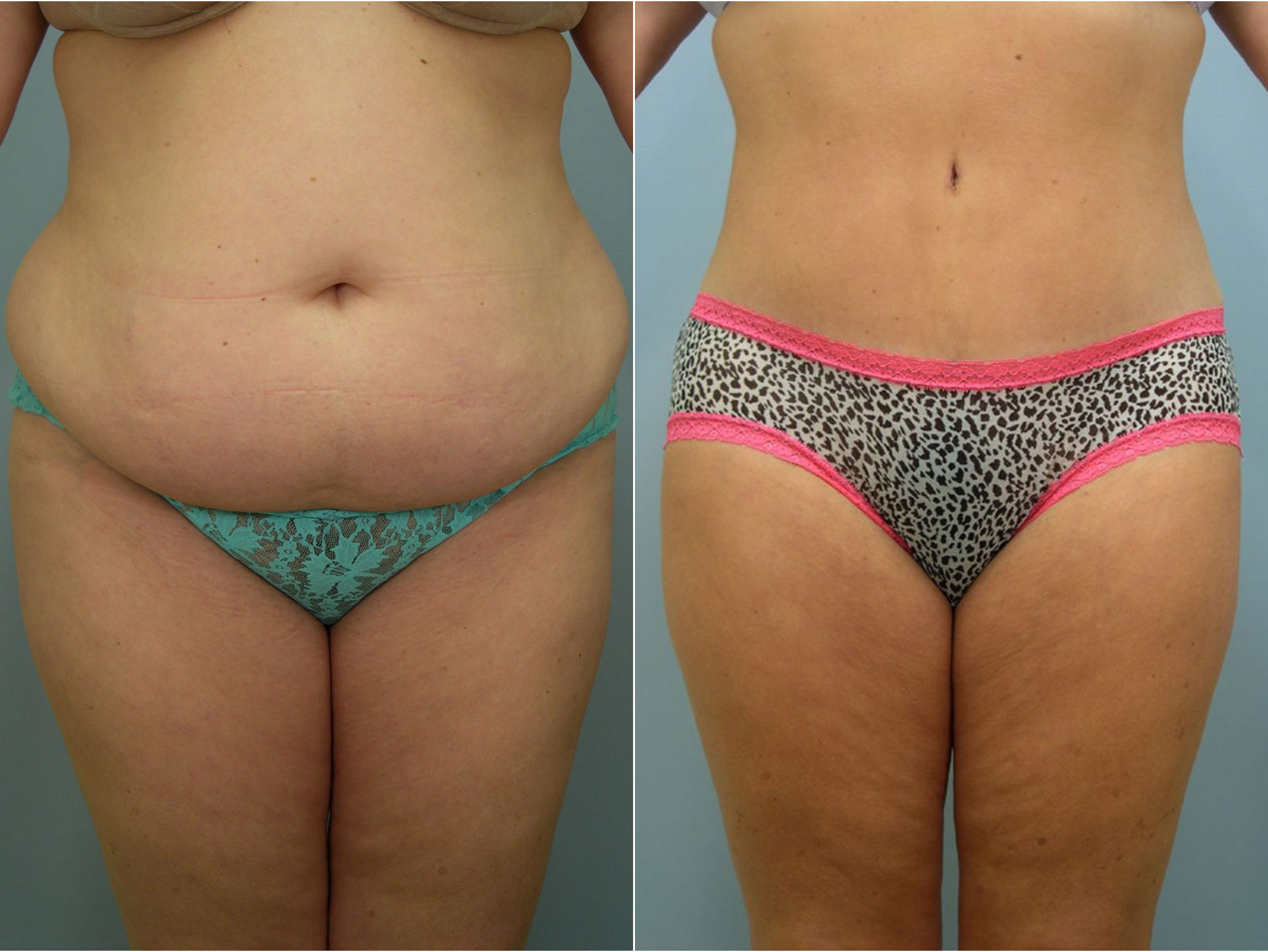 Closeup of female's midsection before and after tummy tuck surgery with extensive sculpting of the abdomen and flanks