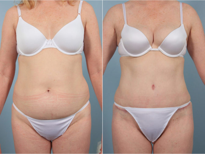 Closeup of female's midsection before and after tummy tuck surgery and liposuction 360 for sculpted abdomen