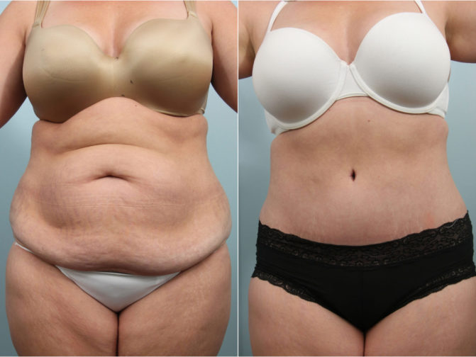 Closeup of female's midsection before and after tummy tuck surgery to remove excess skin and fat