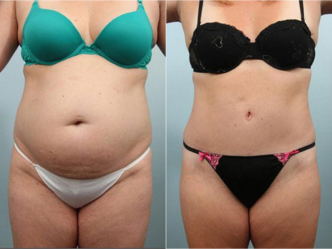 Closeup of female's midsection before and after tummy tuck surgery with double layer reconstruction of abdominal muscles