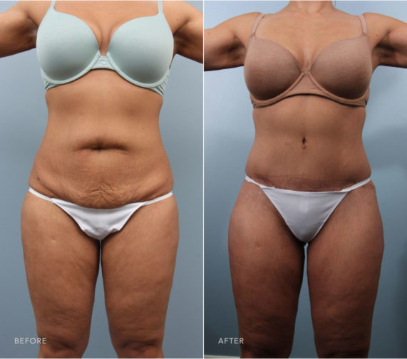 Closeup of female's midsection before and after mommy makeover surgery including a tummy tuck, which tightened abdomen