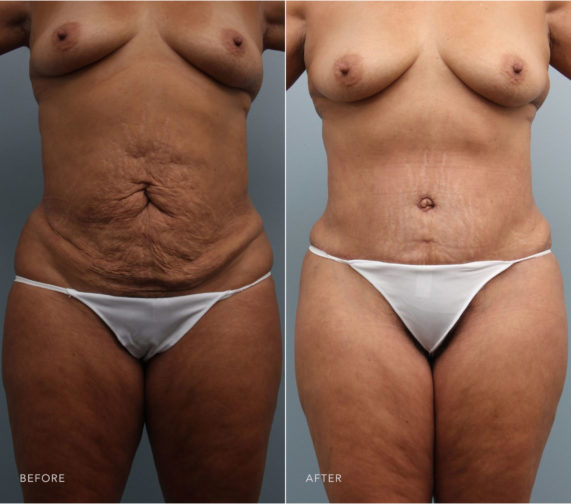 Closeup of female's midsection before and after revision tummy tuck surgery to tighten sagging skin and sculpt the back