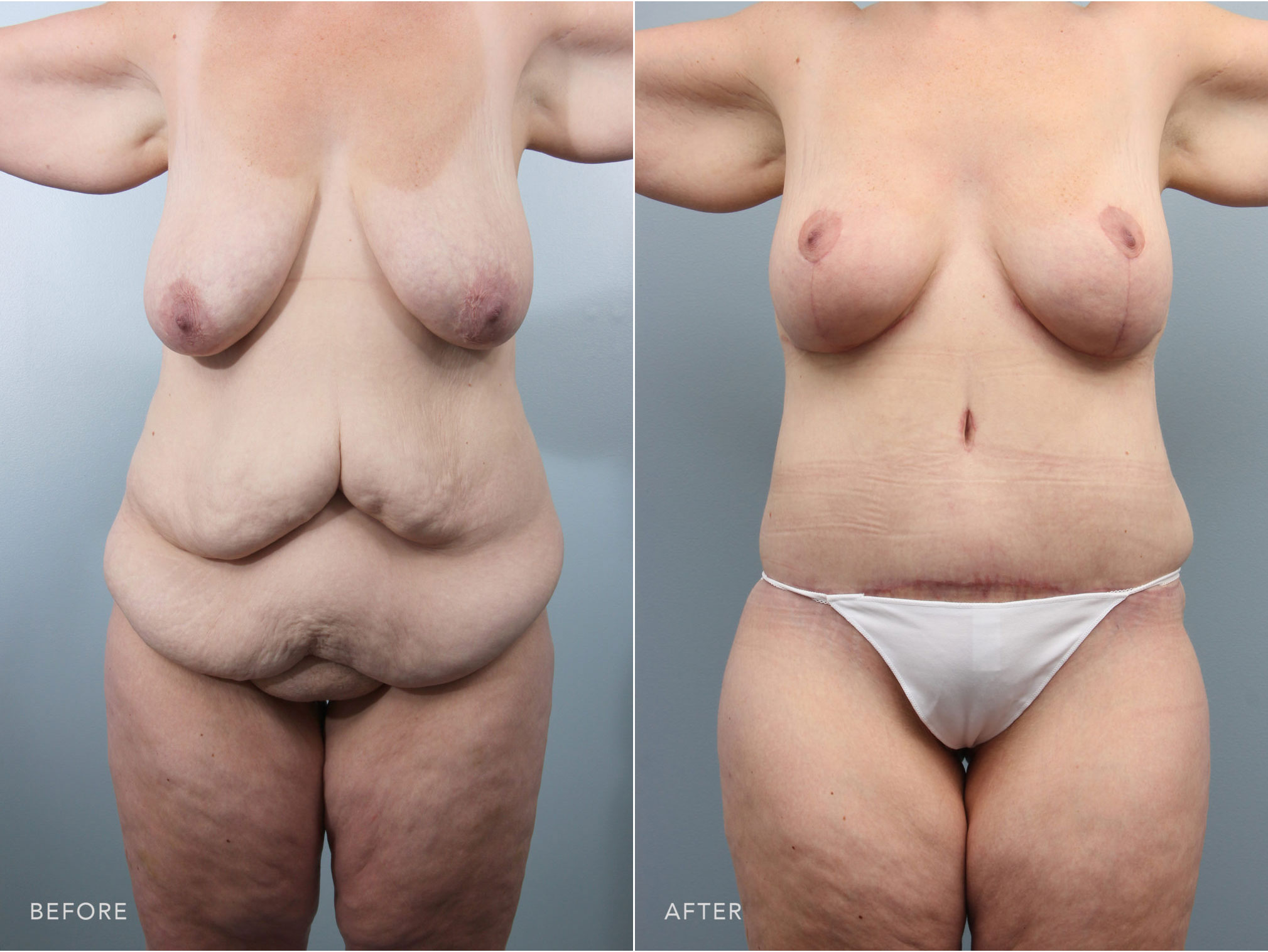 Closeup of female's midsection before and after tummy tuck surgery to remove excess skin after massive weight loss