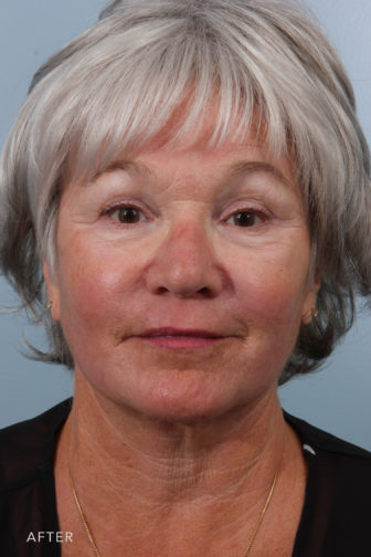 front view image of a middle aged woman after facelift surgery with a more defined jawline and smooth youthful neck