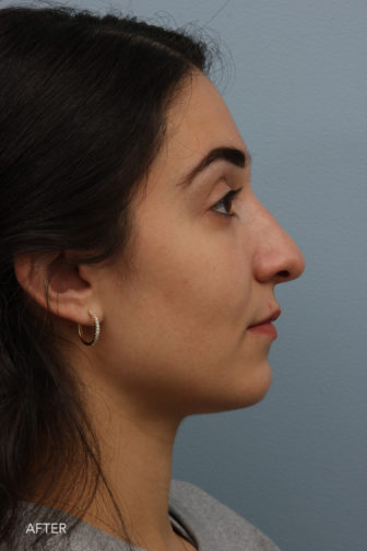 side profile image of a younger woman after rhinoplasty surgery with a flattering nose that fits her face