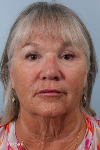 front image of a middle aged woman before facelift surgery with a sagging neck and loose skin around her jowls and excess fat in the cheek area