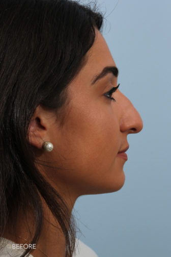 side profile image of a younger woman before rhinoplasty surgery with a droopy nose