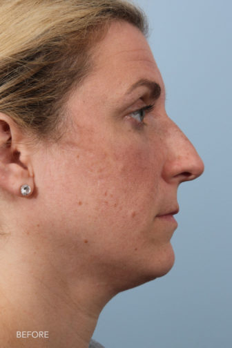 side profile image of a younger woman before rhinoplasty surgery with a humped nose
