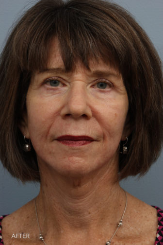 Front angle view of an older aged woman who had a deep place facelift and now has a smooth neck and less wrinkles around the mouth