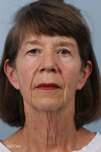 Front View of an older woman with nasolabial folds and a saggy neck